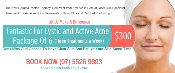 Fantastic For Cystic and Active Acne $300
