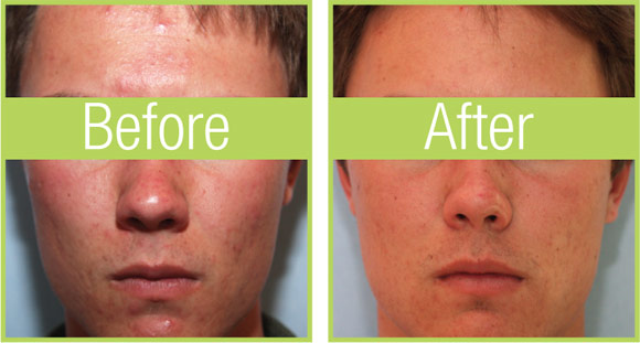 celluma-before-after-guy