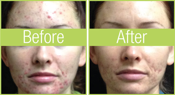 celluma-before-after-lady