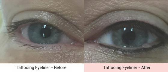 cosmetic-tattooing-1
