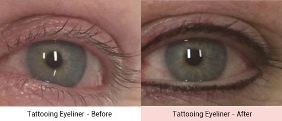 cosmetic-tattooing-3