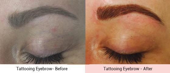 cosmetic-tattooing-4