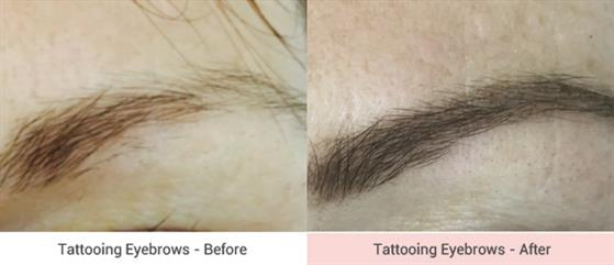 cosmetic-tattooing-5