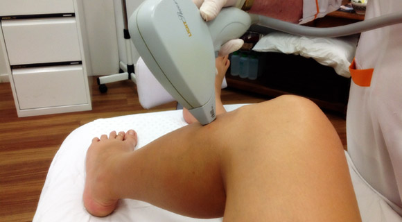 laser-hair-removal-gold-coast