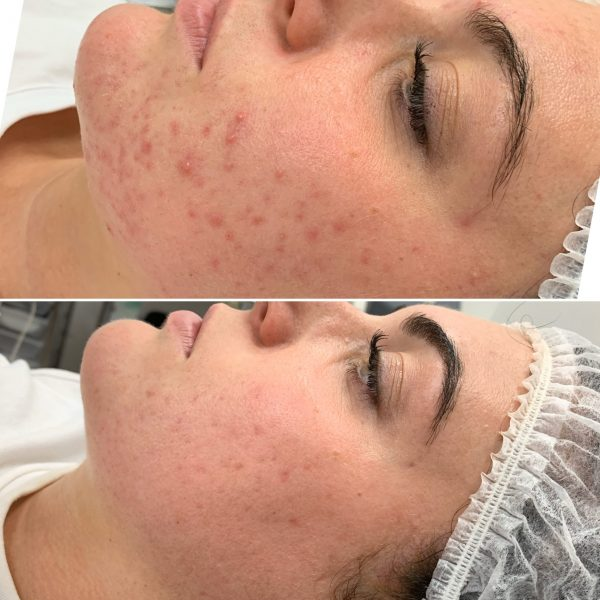 Bianca Acne Before & After Peels & Homecare
