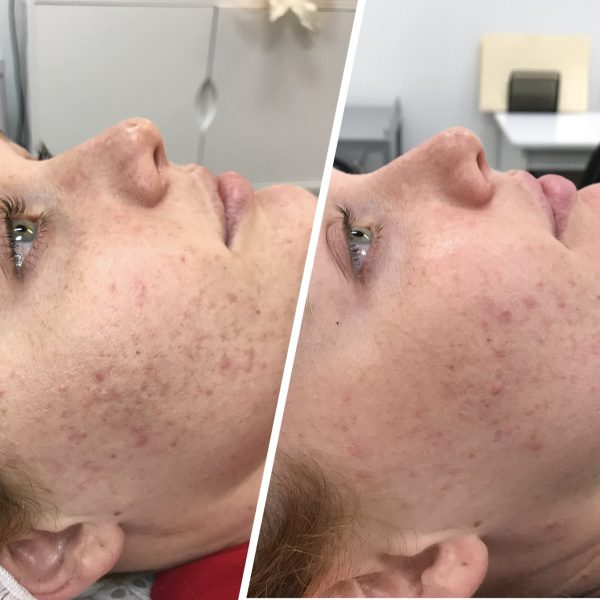 Brooke Acne & Scarring Before & After Needling