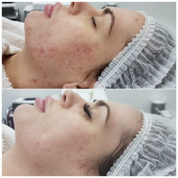Kendall Before & After Skin Needling