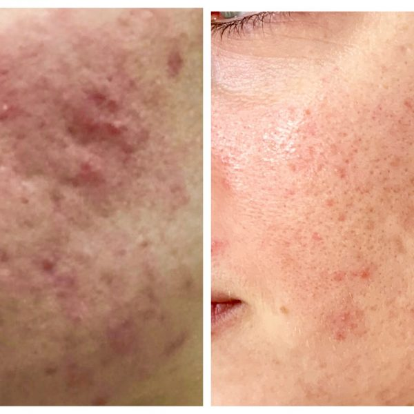 Tash Matic Acne Before & After Peels & Homecare